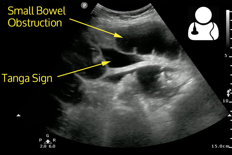 Concomitant Abdominal Free Fluid Has Been Demonstrated To Be Associated With Higher Grade Obstruction6 The Tanga Sign7 Represents